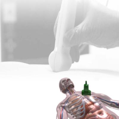VausSim - Create your Ultrasound Simulator