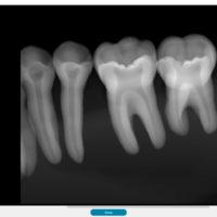 x-ray-new